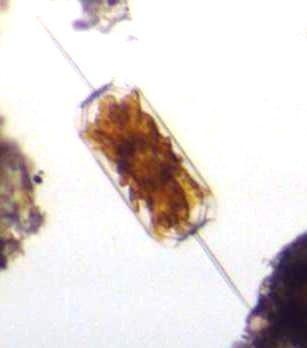 Ditylum sp (diatomée)