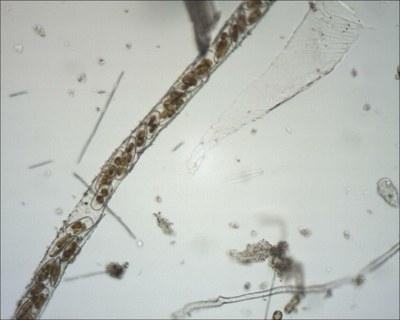Navicules dans un manchon muqueux (diatomées)